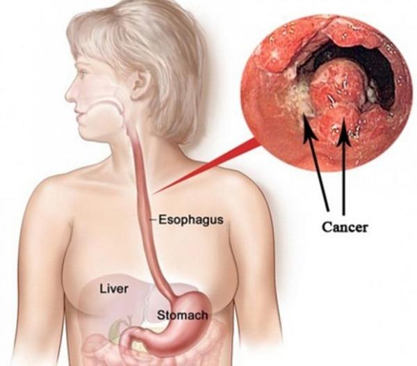 Vì sao nên tầm soát ung thư tuyến giáp, có những phương pháp nào? 1